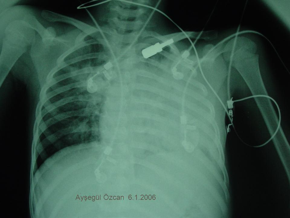 Ayşegül Özcan 6.1.2006
