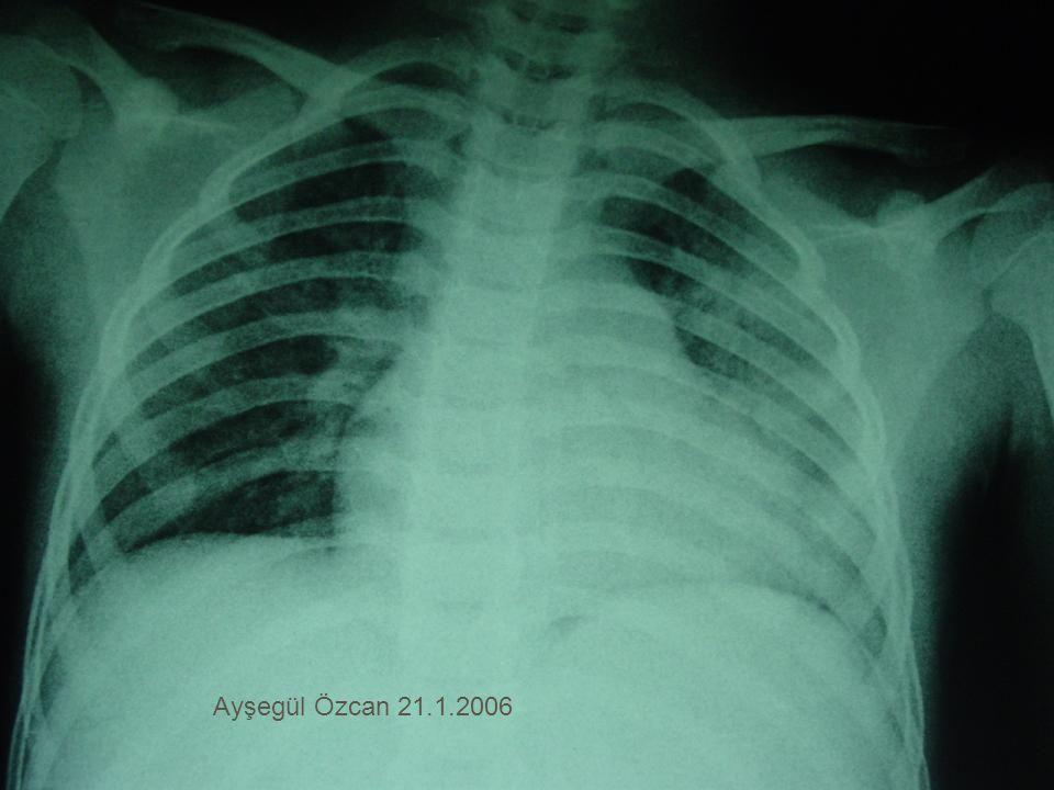 Ayşegül Özcan 21.1.2006