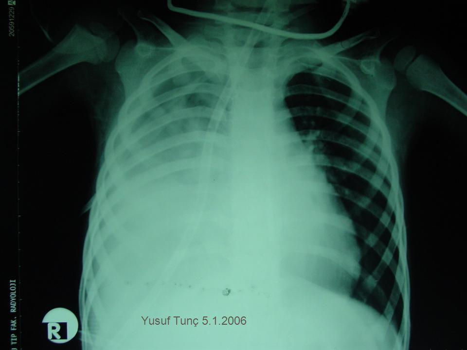 Yusuf Tunç 5.1.2006