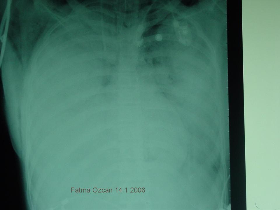 Fatma Özcan 14.1.2006