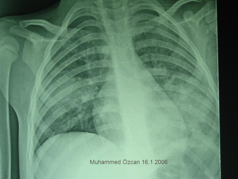 Muhammed Özcan 16.1.2006