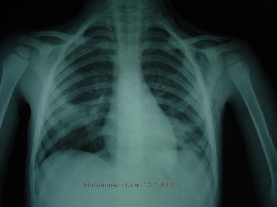 Muhammed Özcan 23.1.2006
