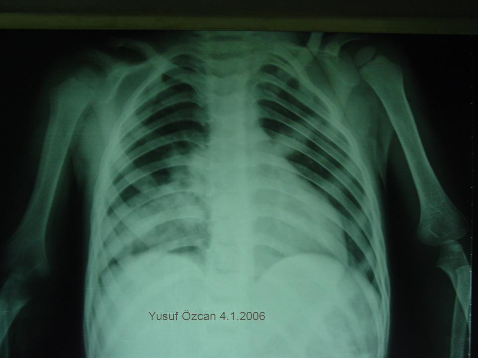 Yusuf Özcan 4.1.2006