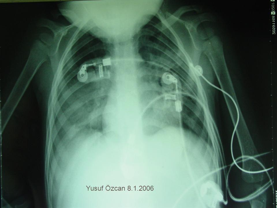 Yusuf Özcan 8.1.2006