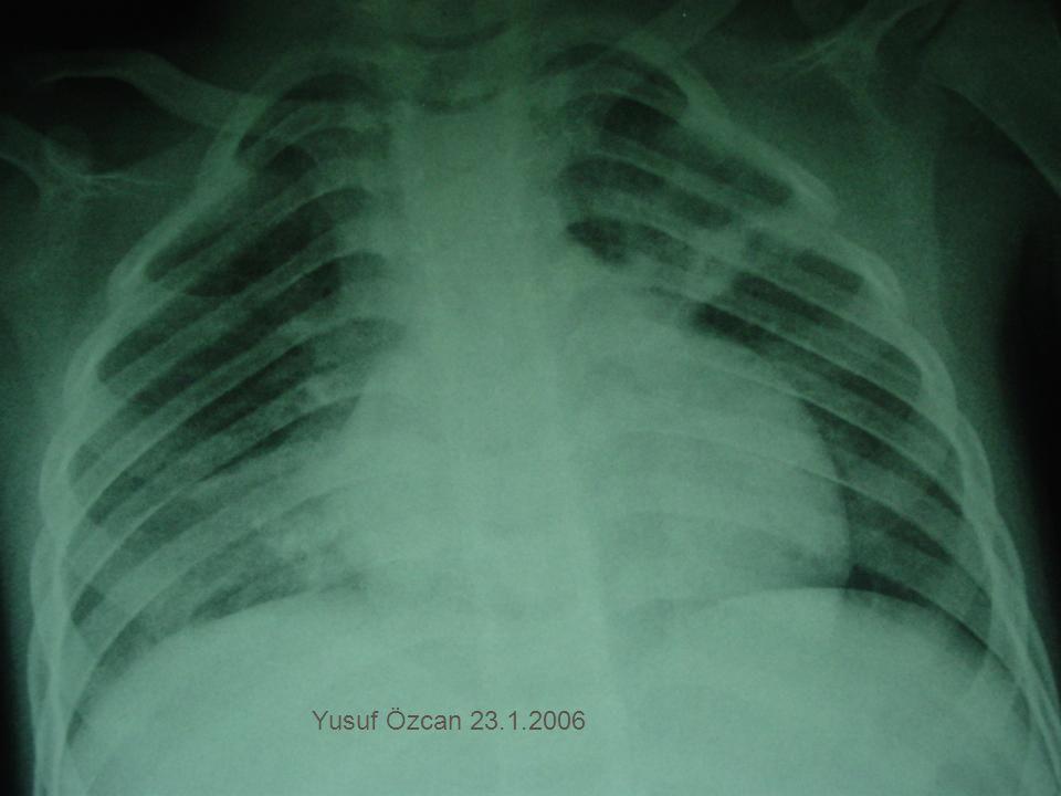 Yusuf Özcan 23.1.2006