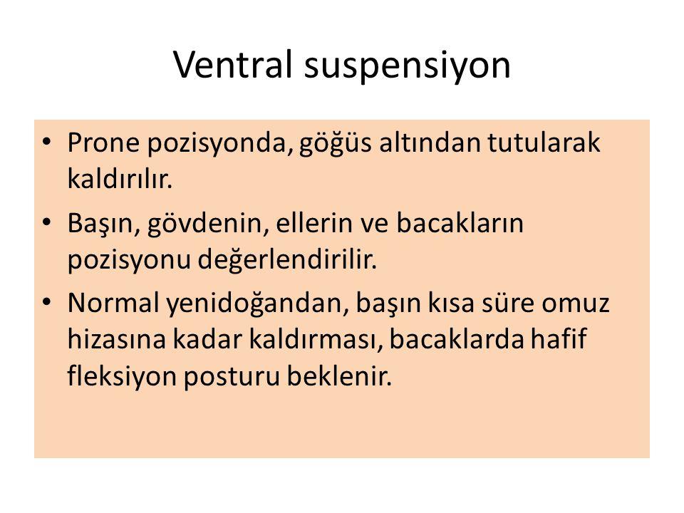 Ventral suspensiyon Prone pozisyonda, göğüs altından tutularak kaldırılır. Başın, gövdenin, ellerin ve bacakların pozisyonu değerlendirilir. Normal ye