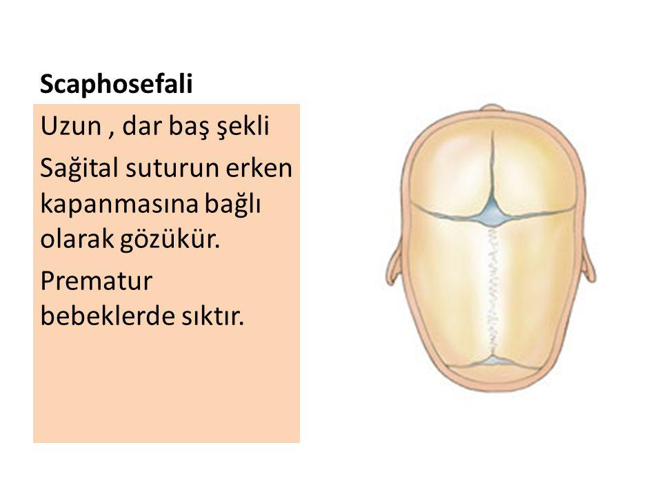 Scaphosefali Uzun, dar baş şekli Sağital suturun erken kapanmasına bağlı olarak gözükür. Prematur bebeklerde sıktır.