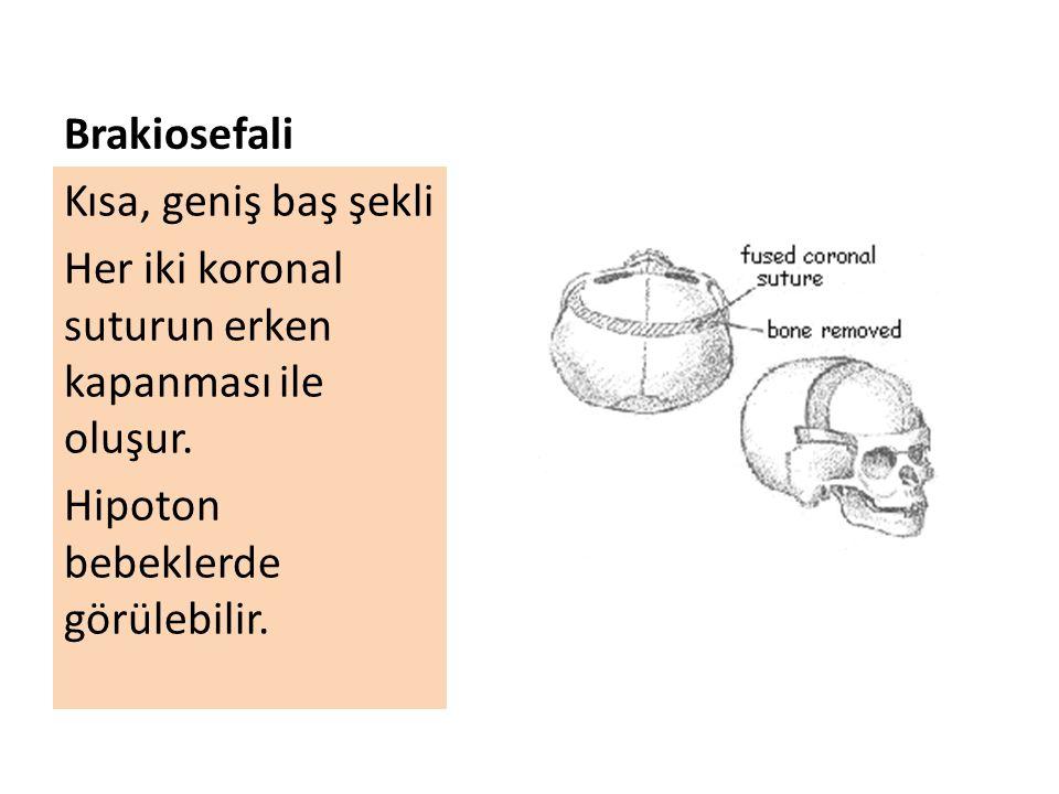 Brakiosefali Kısa, geniş baş şekli Her iki koronal suturun erken kapanması ile oluşur. Hipoton bebeklerde görülebilir.