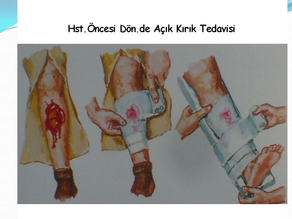 Üst kol kırığı (Humerus) Humerus kırığı genellikle; dirsek ekstansiyonda iken, açık el üzerine düşme sonucu veya ateşli silahla direk yaralanmalar sonucu meydana gelir.