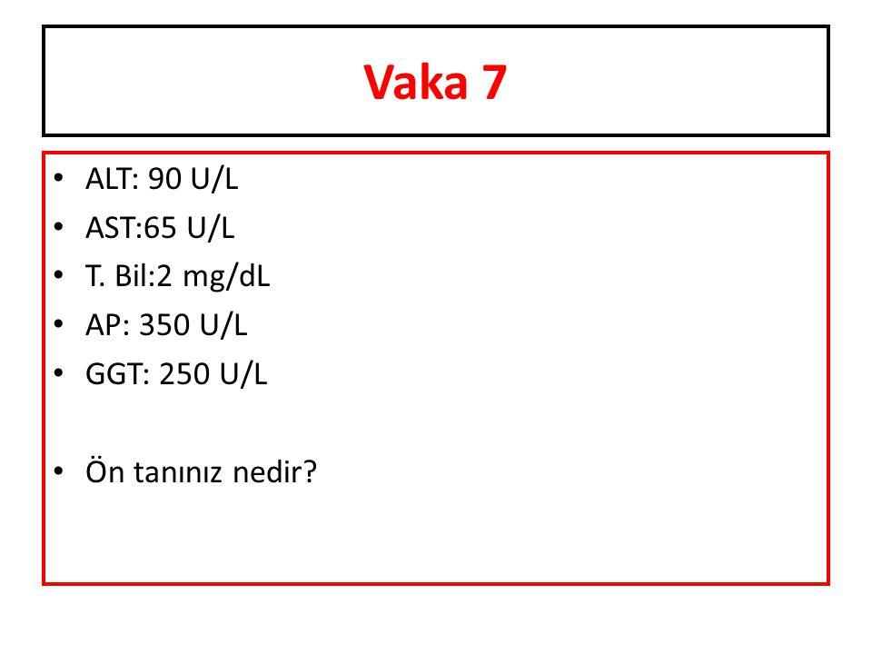 Vaka 7 ALT: 90 U/L AST:65 U/L T. Bil:2 mg/dL AP: 350 U/L GGT: 250 U/L Ön tanınız nedir?