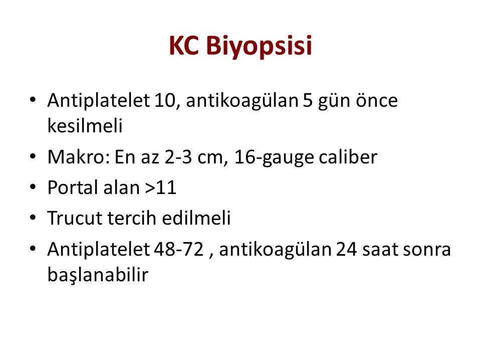 KC Biyopsisi Antiplatelet 10, antikoagülan 5 gün önce kesilmeli Makro: En az 2-3 cm, 16-gauge caliber Portal alan >11 Trucut tercih edilmeli Antiplate