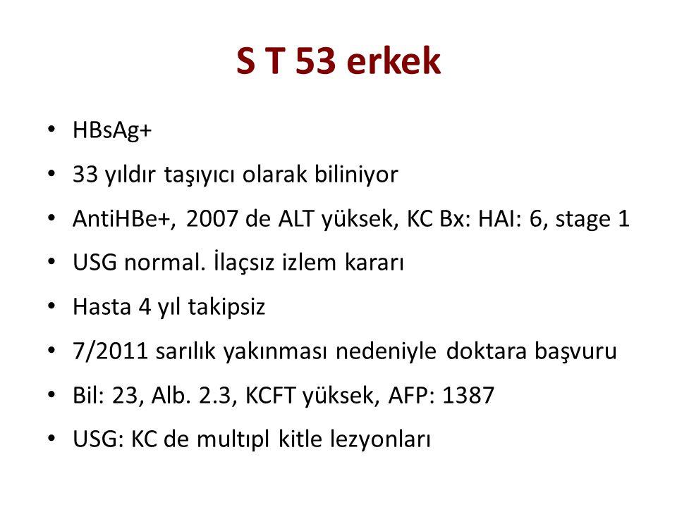 S T 53 erkek HBsAg+ 33 yıldır taşıyıcı olarak biliniyor AntiHBe+, 2007 de ALT yüksek, KC Bx: HAI: 6, stage 1 USG normal. İlaçsız izlem kararı Hasta 4