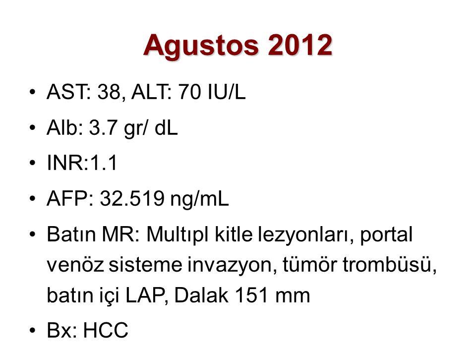 Agustos 2012 AST: 38, ALT: 70 IU/L Alb: 3.7 gr/ dL INR:1.1 AFP: 32.519 ng/mL Batın MR: Multıpl kitle lezyonları, portal venöz sisteme invazyon, tümör