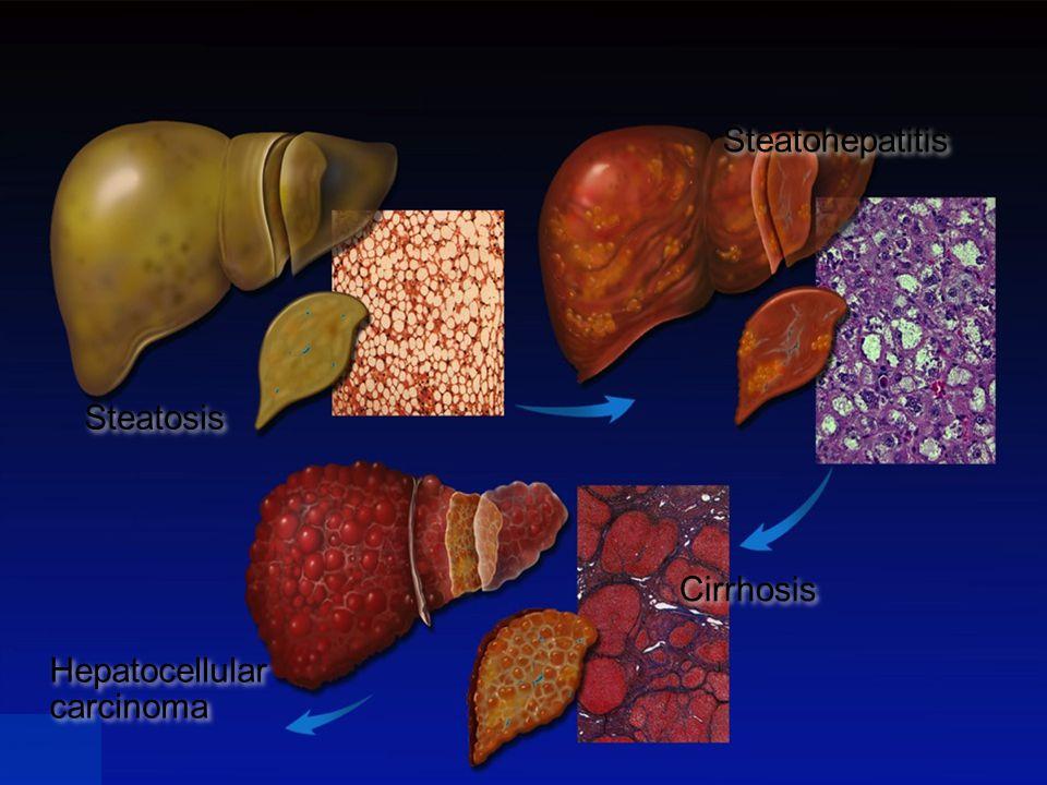 Steatosis Steatohepatitis Cirrhosis Hepatocellular carcinoma