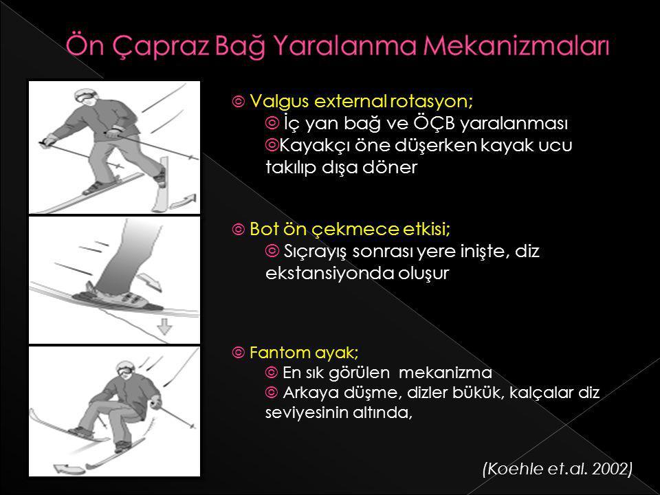 © Valgus external rotasyon; © İç yan bağ ve ÖÇB yaralanması ©Kayakçı öne düşerken kayak ucu takılıp dışa döner © Bot ön çekmece etkisi; © Sıçrayış son