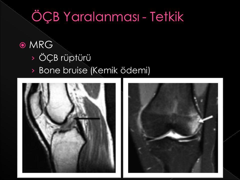  MRG › ÖÇB rüptürü › Bone bruise (Kemik ödemi)