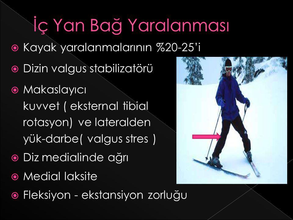  Kayak yaralanmalarının %20-25'i  Dizin valgus stabilizatörü  Makaslayıcı kuvvet ( eksternal tibial rotasyon) ve lateralden yük-darbe( valgus stres