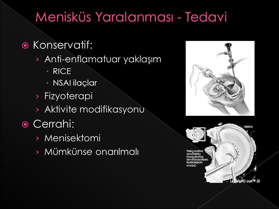  Konservatif: › Anti-enflamatuar yaklaşım  RICE  NSAI ilaçlar › Fizyoterapi › Aktivite modifikasyonu  Cerrahi: › Menisektomi › Mümkünse onarılmalı