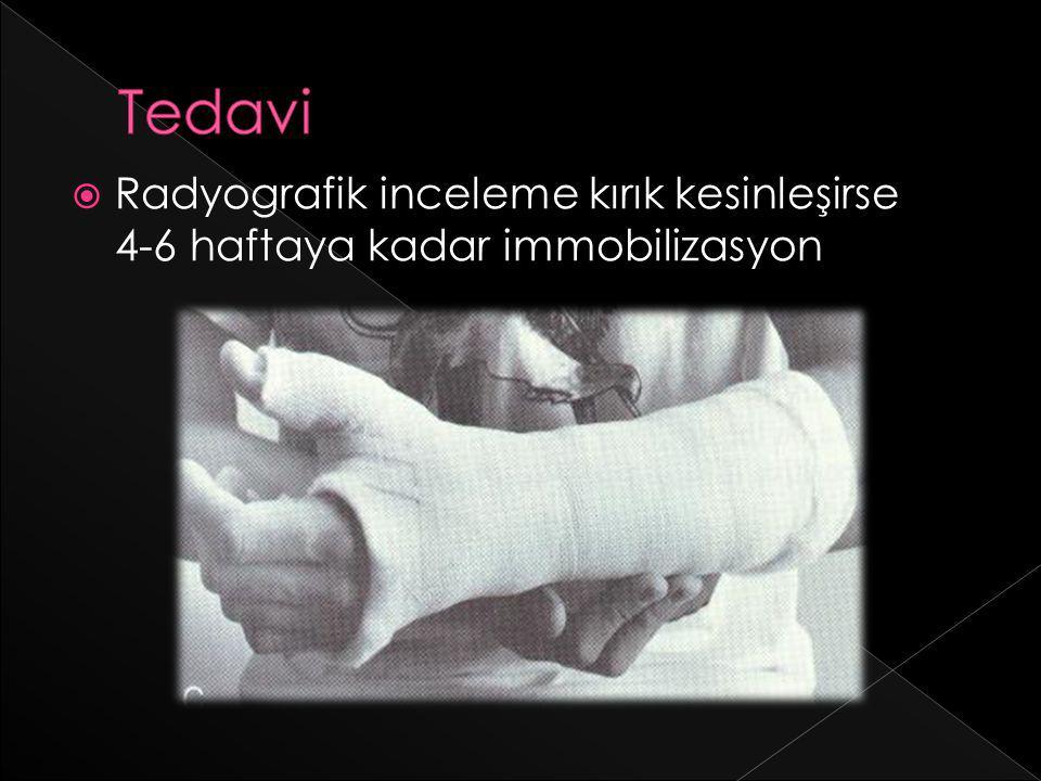  Radyografik inceleme kırık kesinleşirse 4-6 haftaya kadar immobilizasyon