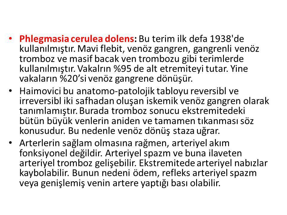 Phlegmasia cerulea dolens: Bu terim ilk defa 1938 de kullanılmıştır.