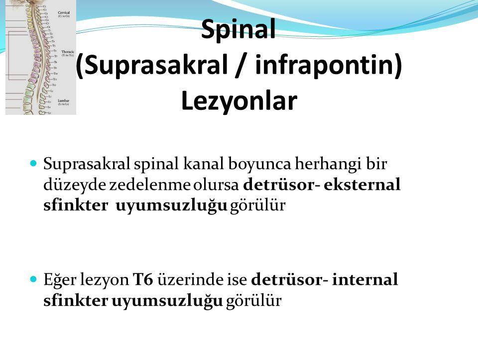 Spinal (Suprasakral / infrapontin) Lezyonlar Suprasakral spinal kanal boyunca herhangi bir düzeyde zedelenme olursa detrüsor- eksternal sfinkter uyums