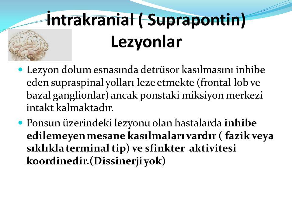 İntrakranial ( Suprapontin) Lezyonlar Lezyon dolum esnasında detrüsor kasılmasını inhibe eden supraspinal yolları leze etmekte (frontal lob ve bazal ganglionlar) ancak ponstaki miksiyon merkezi intakt kalmaktadır.
