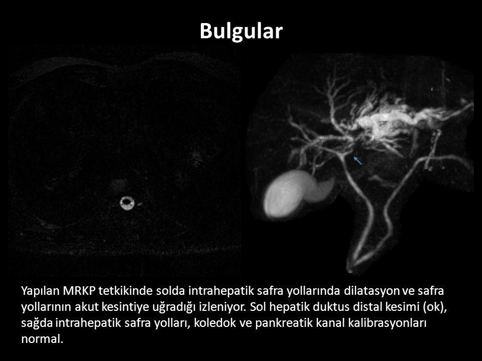 Yapılan MRKP tetkikinde solda intrahepatik safra yollarında dilatasyon ve safra yollarının akut kesintiye uğradığı izleniyor.