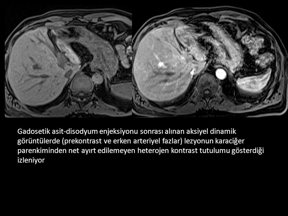 Gadosetik asit-disodyum enjeksiyonu sonrası alınan aksiyel dinamik görüntülerde (prekontrast ve erken arteriyel fazlar) lezyonun karaciğer parenkiminden net ayırt edilemeyen heterojen kontrast tutulumu gösterdiği izleniyor
