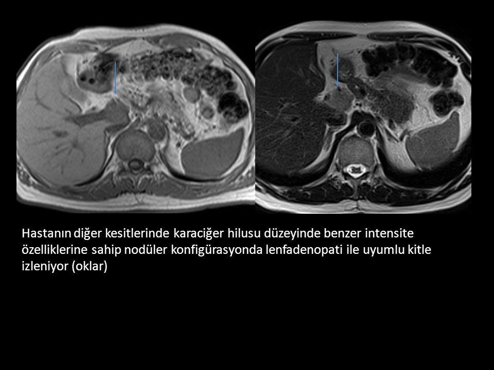 Hastanın diğer kesitlerinde karaciğer hilusu düzeyinde benzer intensite özelliklerine sahip nodüler konfigürasyonda lenfadenopati ile uyumlu kitle izleniyor (oklar)