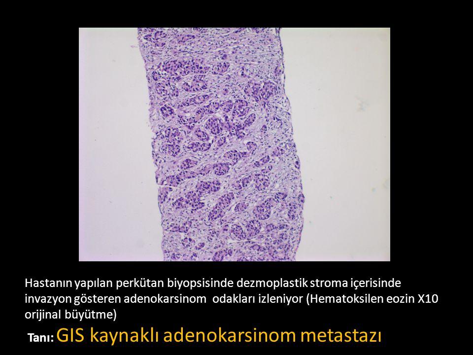 Hastanın yapılan perkütan biyopsisinde dezmoplastik stroma içerisinde invazyon gösteren adenokarsinom odakları izleniyor (Hematoksilen eozin X10 orijinal büyütme) Tanı: GIS kaynaklı adenokarsinom metastazı