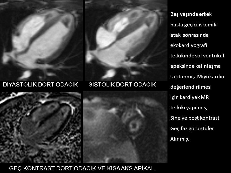 DİYASTOLİK DÖRT ODACIKSİSTOLİK DÖRT ODACIK GEÇ KONTRAST DÖRT ODACIK VE KISA AKS APİKAL Beş yaşında erkek hasta geçici iskemik atak sonrasında ekokardiyografi tetkikinde sol ventrikül apeksinde kalınlaşma saptanmış.