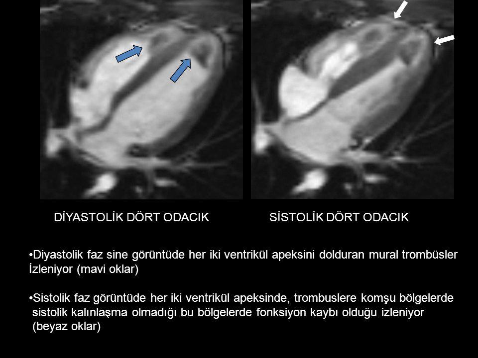 DİYASTOLİK DÖRT ODACIKSİSTOLİK DÖRT ODACIK Diyastolik faz sine görüntüde her iki ventrikül apeksini dolduran mural trombüsler İzleniyor (mavi oklar) Sistolik faz görüntüde her iki ventrikül apeksinde, trombuslere komşu bölgelerde sistolik kalınlaşma olmadığı bu bölgelerde fonksiyon kaybı olduğu izleniyor (beyaz oklar)
