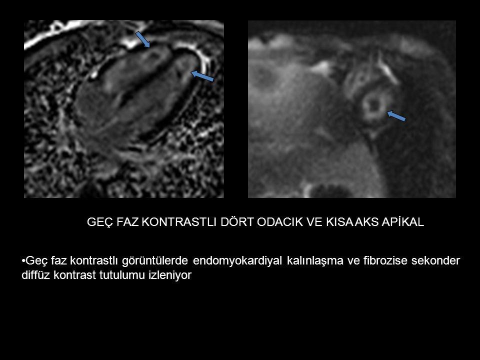 GEÇ FAZ KONTRASTLI DÖRT ODACIK VE KISA AKS APİKAL Geç faz kontrastlı görüntülerde endomyokardiyal kalınlaşma ve fibrozise sekonder diffüz kontrast tutulumu izleniyor