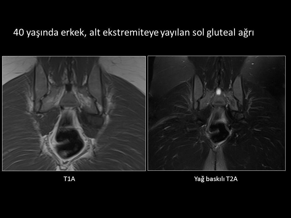 T1AYağ baskılı T2A 40 yaşında erkek, alt ekstremiteye yayılan sol gluteal ağrı