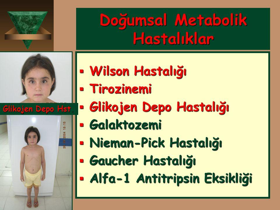 Doğumsal Metabolik Hastalıklar  Wilson Hastalığı  Tirozinemi  Glikojen Depo Hastalığı  Galaktozemi  Nieman-Pick Hastalığı  Gaucher Hastalığı  A