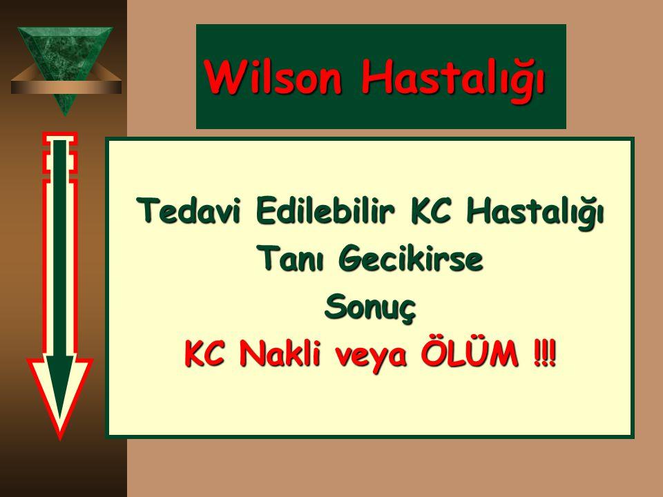 Wilson Hastalığı Tedavi Edilebilir KC Hastalığı Tanı Gecikirse Sonuç KC Nakli veya ÖLÜM !!!