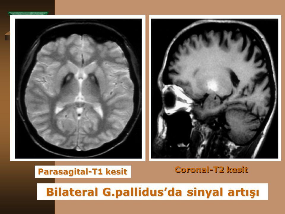 Bilateral G.pallidus'da sinyal artışı Parasagital-T1 kesit Coronal-T2 kesit