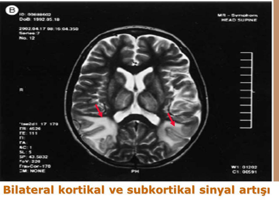 Bilateral kortikal ve subkortikal sinyal artışı