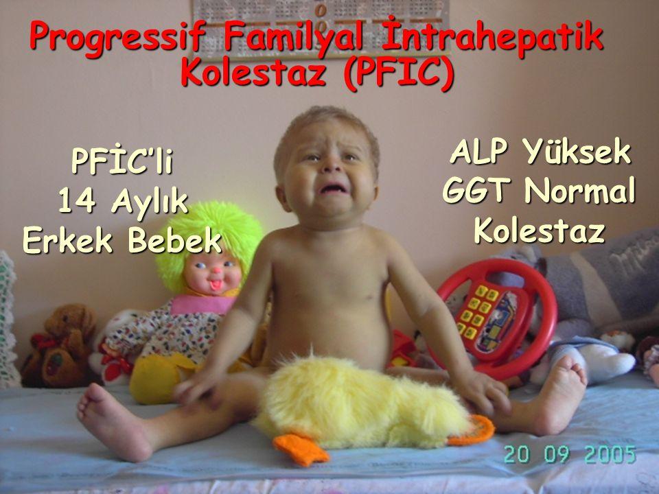 PFİC'li 14 Aylık Erkek Bebek ALP Yüksek GGT Normal Kolestaz Progressif Familyal İntrahepatik Kolestaz (PFIC)