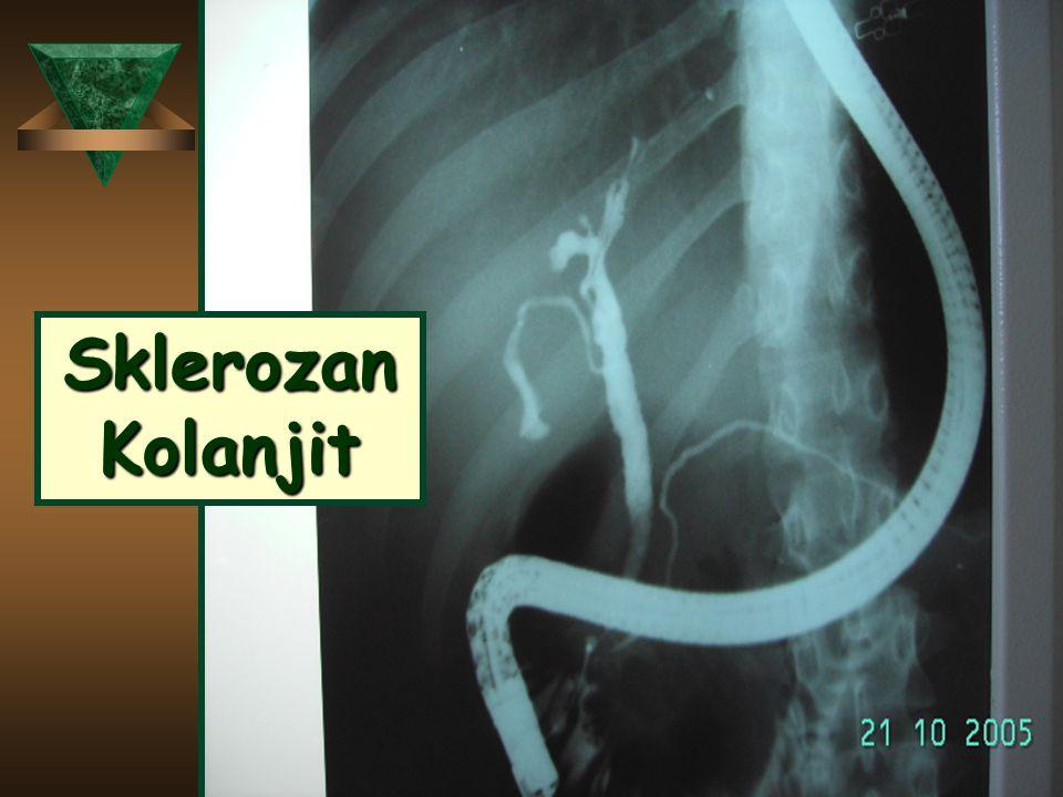 Sklerozan Kolanjit