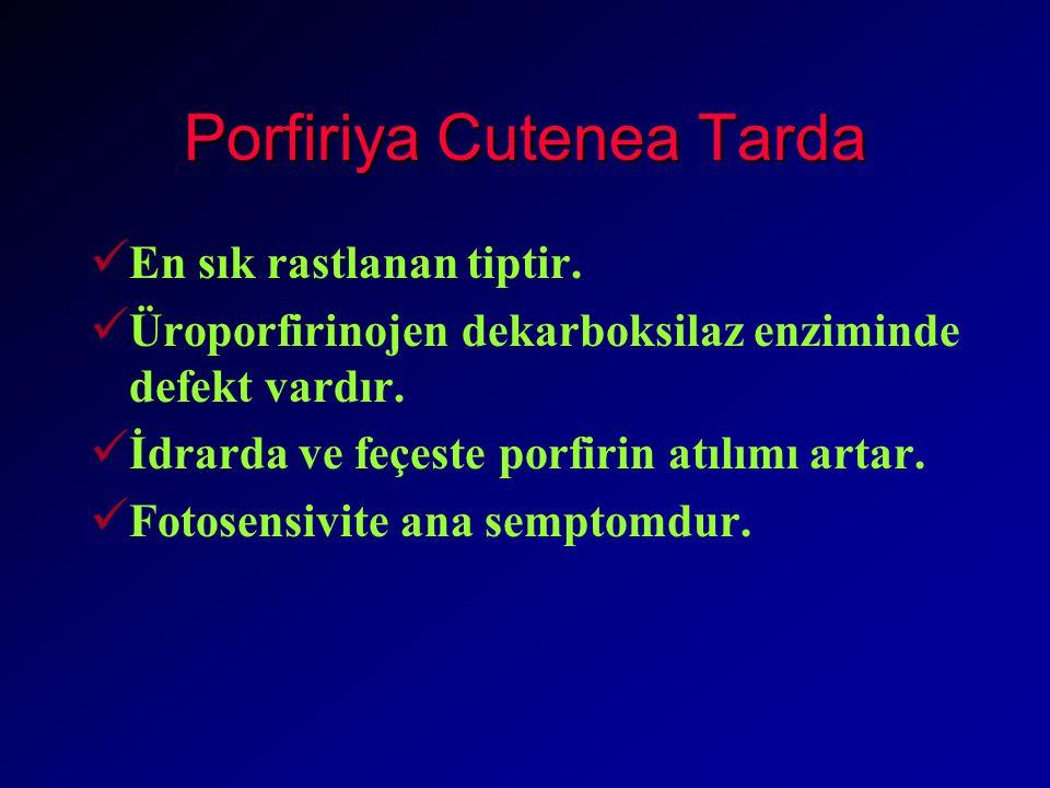 Porfiriya Cutenea Tarda En sık rastlanan tiptir.