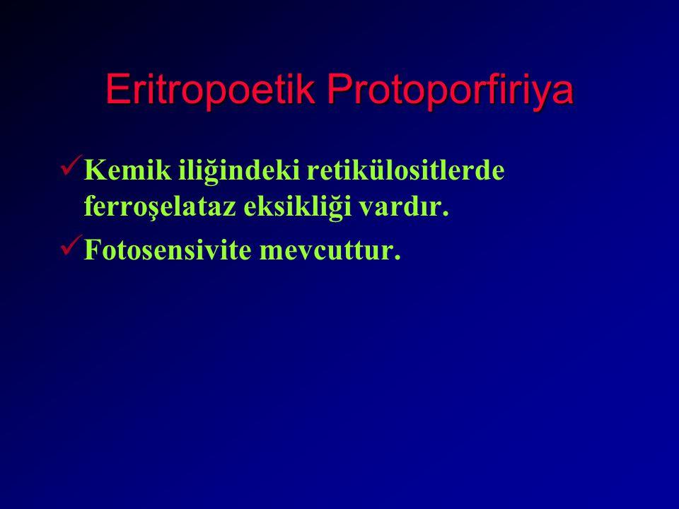 Eritropoetik Protoporfiriya Kemik iliğindeki retikülositlerde ferroşelataz eksikliği vardır.