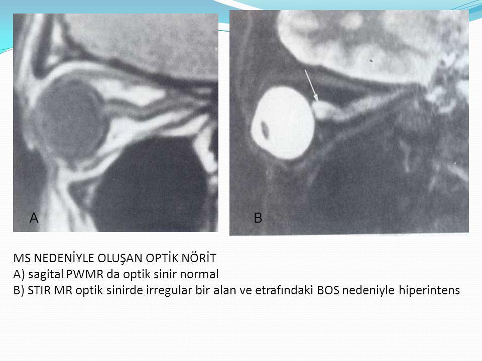MS NEDENİYLE OLUŞAN OPTİK NÖRİT A) sagital PWMR da optik sinir normal B) STIR MR optik sinirde irregular bir alan ve etrafındaki BOS nedeniyle hiperin