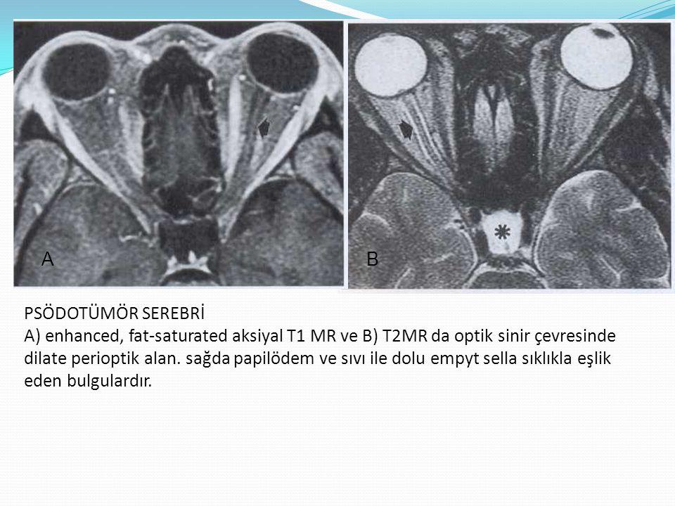 PSÖDOTÜMÖR SEREBRİ A) enhanced, fat-saturated aksiyal T1 MR ve B) T2MR da optik sinir çevresinde dilate perioptik alan. sağda papilödem ve sıvı ile do