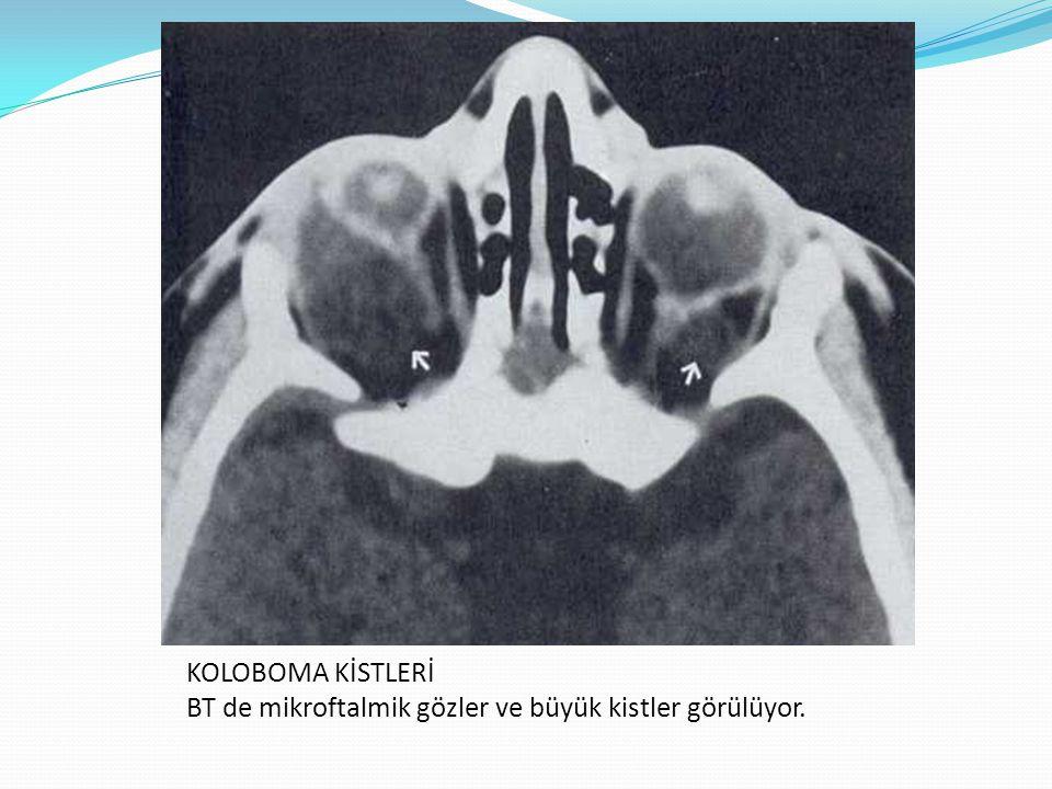 KOLOBOMA KİSTLERİ BT de mikroftalmik gözler ve büyük kistler görülüyor.