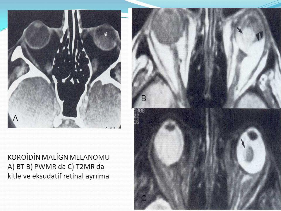 KOROİDİN MALİGN MELANOMU A) BT B) PWMR da C) T2MR da kitle ve eksudatif retinal ayrılma A B C