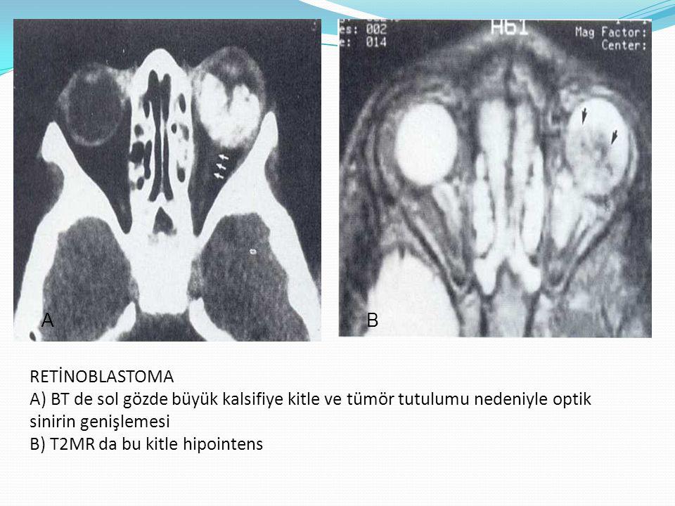 RETİNOBLASTOMA A) BT de sol gözde büyük kalsifiye kitle ve tümör tutulumu nedeniyle optik sinirin genişlemesi B) T2MR da bu kitle hipointens AB