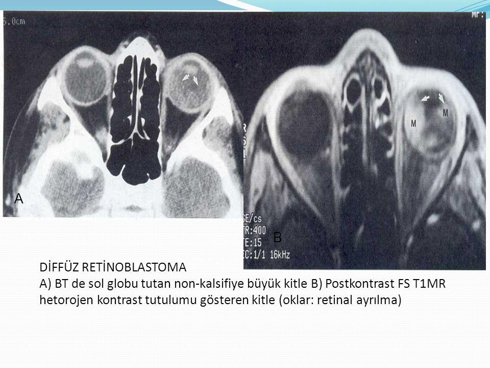 DİFFÜZ RETİNOBLASTOMA A) BT de sol globu tutan non-kalsifiye büyük kitle B) Postkontrast FS T1MR hetorojen kontrast tutulumu gösteren kitle (oklar: re