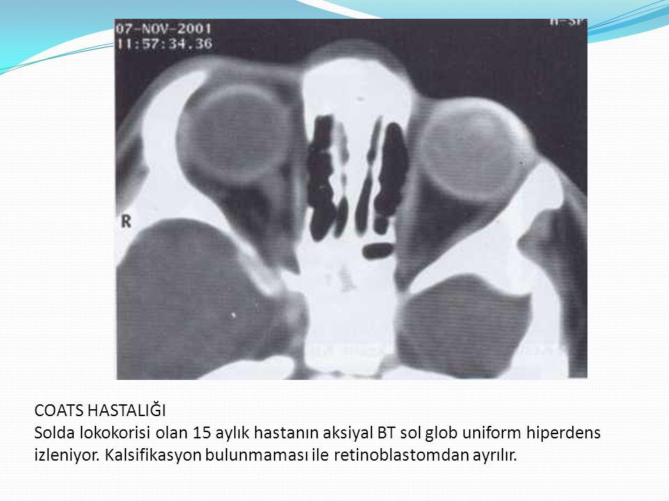 COATS HASTALIĞI Solda lokokorisi olan 15 aylık hastanın aksiyal BT sol glob uniform hiperdens izleniyor. Kalsifikasyon bulunmaması ile retinoblastomda