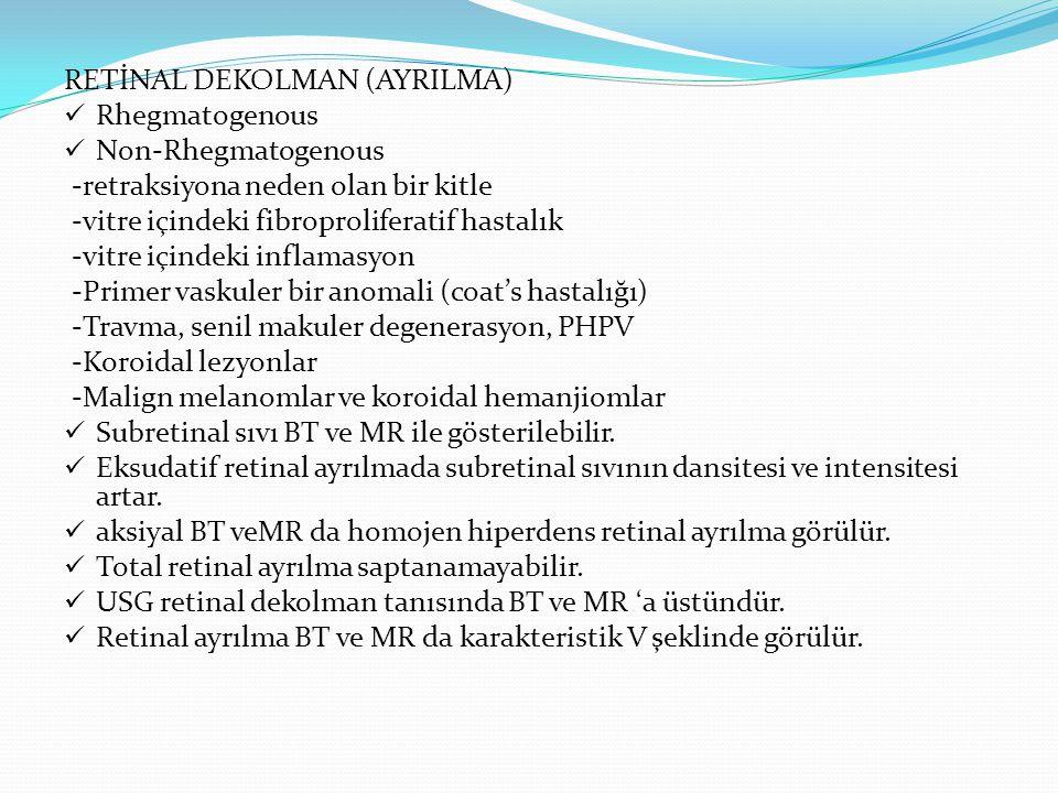 RETİNAL DEKOLMAN (AYRILMA) Rhegmatogenous Non-Rhegmatogenous -retraksiyona neden olan bir kitle -vitre içindeki fibroproliferatif hastalık -vitre için